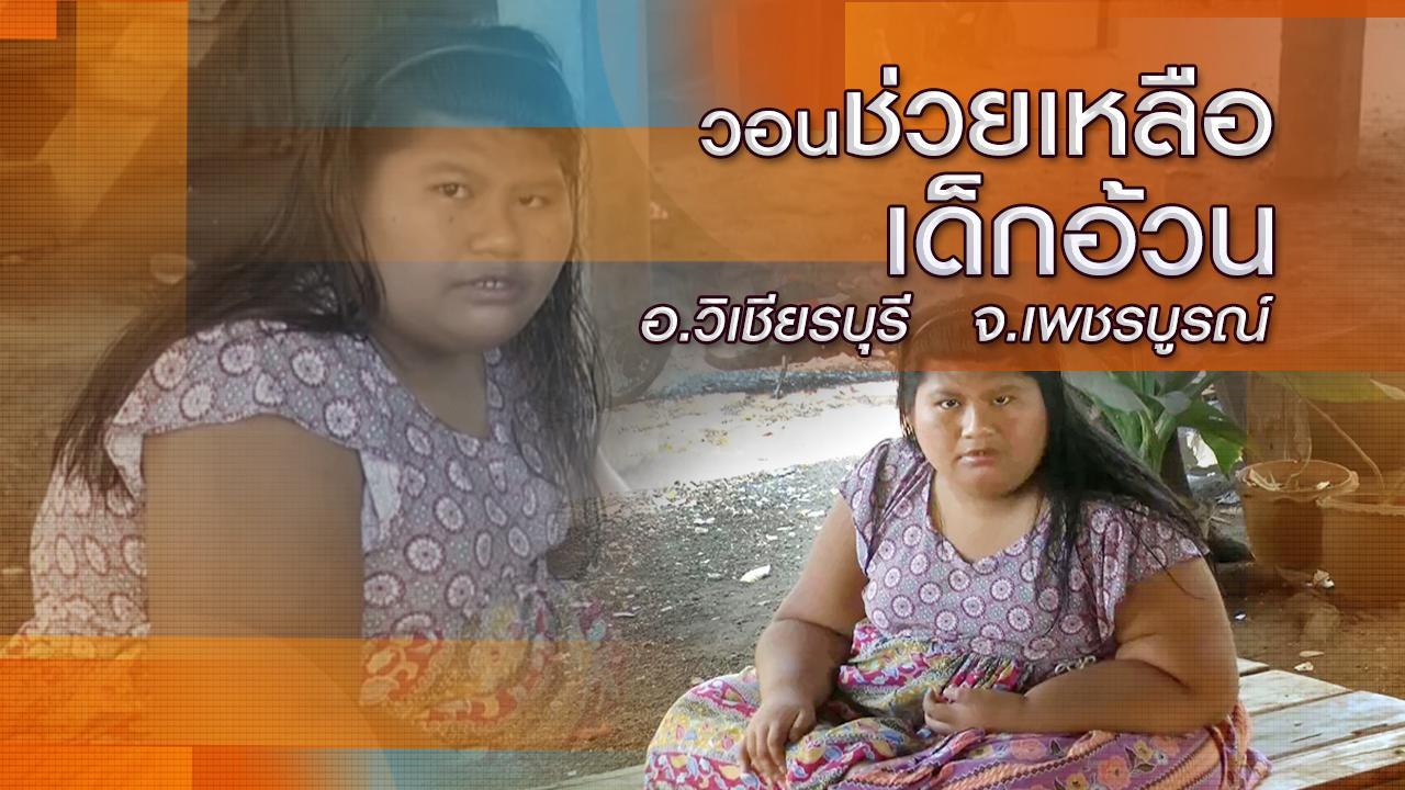 ร้องทุก(ข์) ลงป้ายนี้ - วอนช่วยเหลือเด็กอ้วน อ.วิเชียรบุรี จ.เพชรบูรณ์