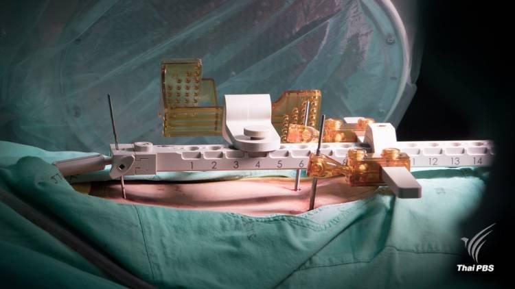 """นารีกระจ่าง - หุ่นยนต์ช่วยผ่าตัดแห่งแรกในไทย, นักโทษฝึกหมา, เพลงฉ่อย """"ตามรอยพ่อหลวง"""""""