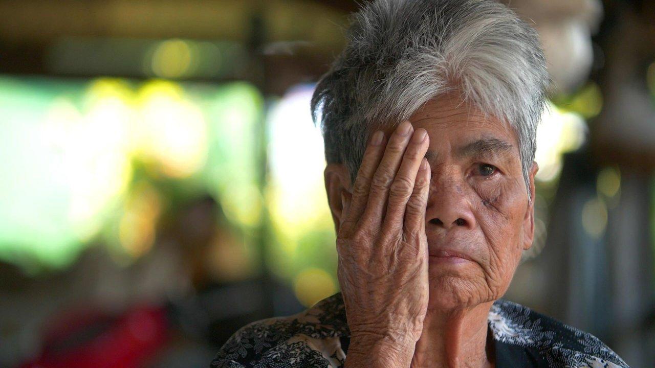 แพะ เดอะซีรีส์ - ผ่าต้อตาบอด