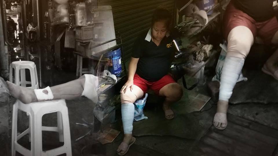ร้องทุก(ข์) ลงป้ายนี้ - หญิงท้อง 8 เดือนเดินตกท่อระบายน้ำ เย็บ 42 เข็ม เขตจตุจักร กทม.