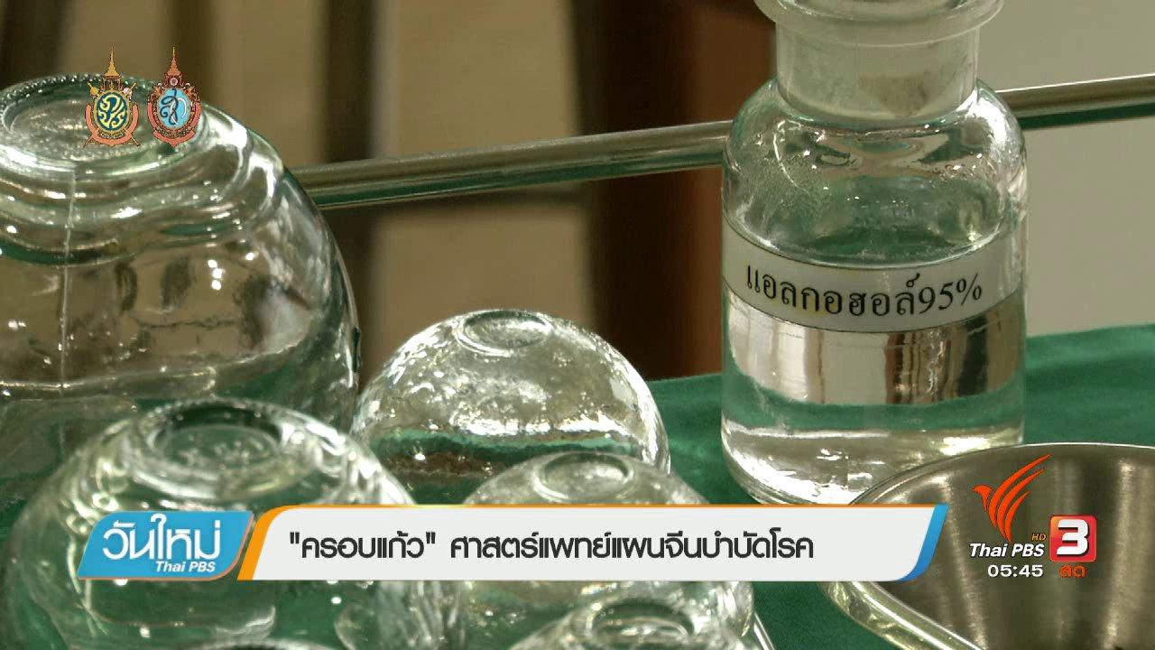 """วันใหม่  ไทยพีบีเอส - 108 สุขภาพ : """"ครอบแก้ว"""" ศาสตร์แพทย์แผนจีนบำบัดโรค"""