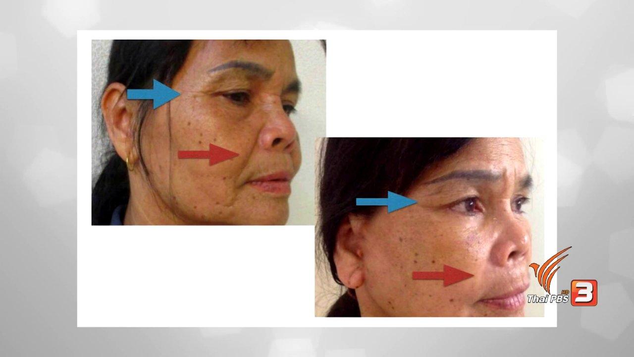 คนสู้โรค - รู้สู้โรค : ศัลยกรรมแก้หนังตาตก