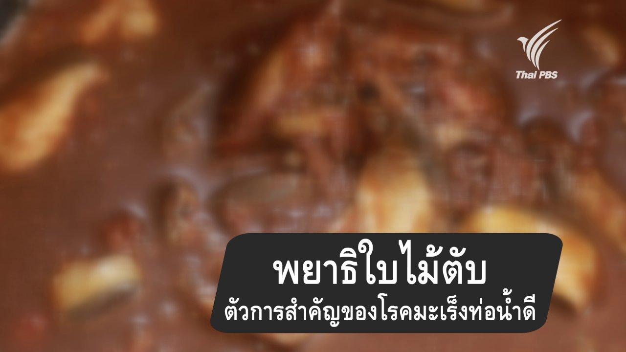 กินอยู่คือ - พยาธิใบไม้ในตับตัวการสำคัญของโรคมะเร็งท่อน้ำดี