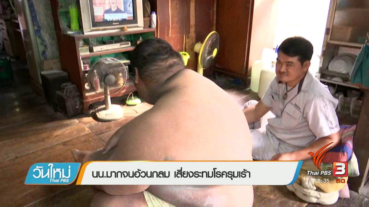 วันใหม่  ไทยพีบีเอส - 108 สุขภาพ : น้ำหนักมากจนอ้วนกลม เสี่ยงระทมโรครุมเร้า