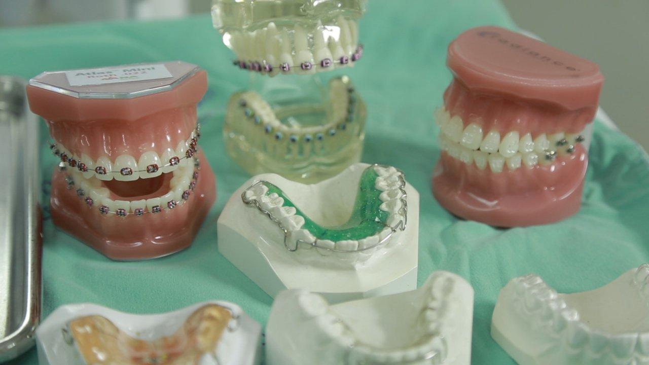 คนสู้โรค - อันตรายจากการจัดฟันแฟชั่น