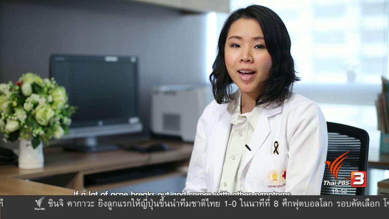 ข่าวค่ำ มิติใหม่ทั่วไทย - soเชี่ยว FAKE or FACT : ตำแหน่งของสิวบอกโรคได้จริงหรือไม่