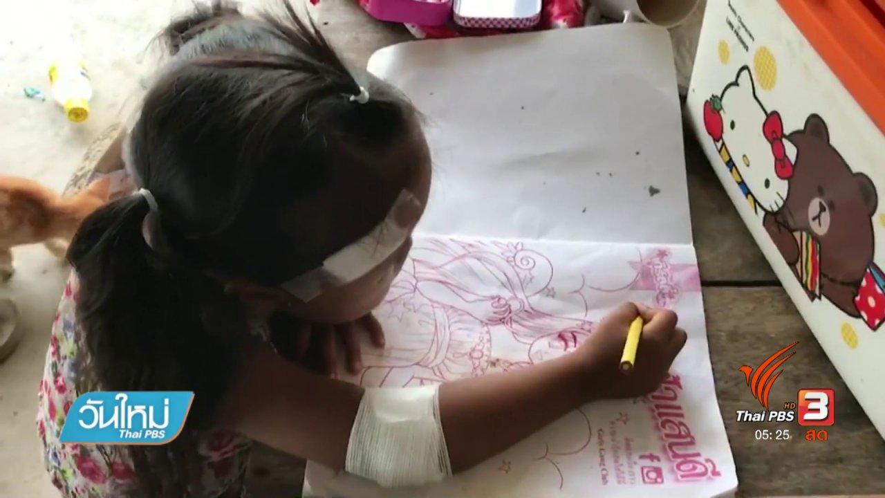 วันใหม่  ไทยพีบีเอส - สุนัขกัดเด็กหญิง 4 ปี บาดเจ็บ