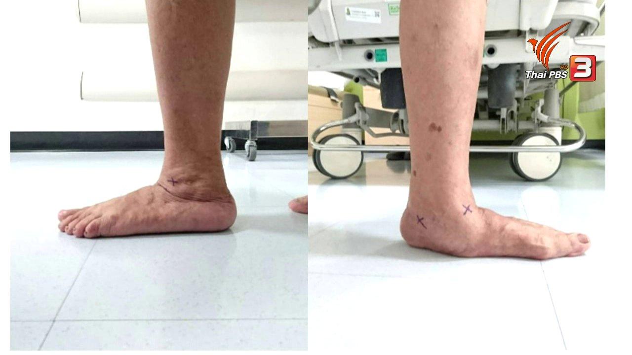 คนสู้โรค - รู้สู้โรค : เท้าแบนในผู้สูงอายุ