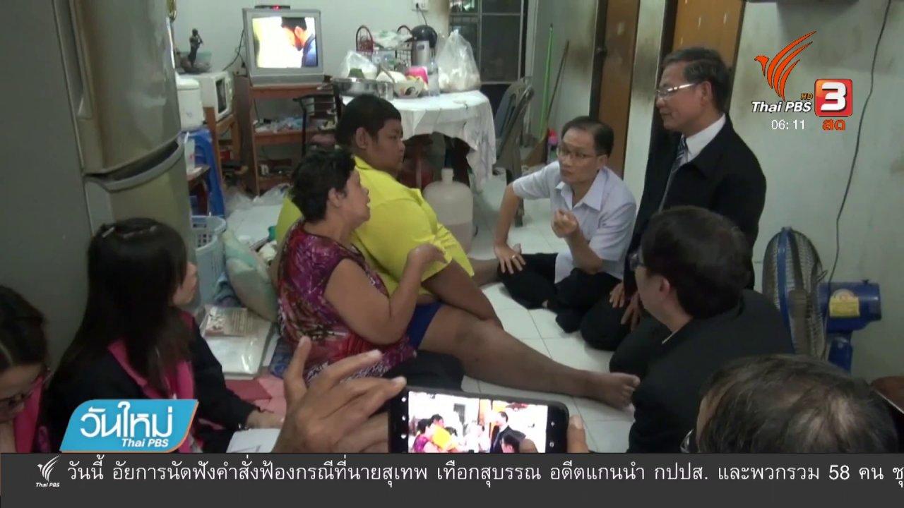 วันใหม่  ไทยพีบีเอส - เตรียมผ่าตัดกระเพาะช่วยผู้ป่วยโรคอ้วน
