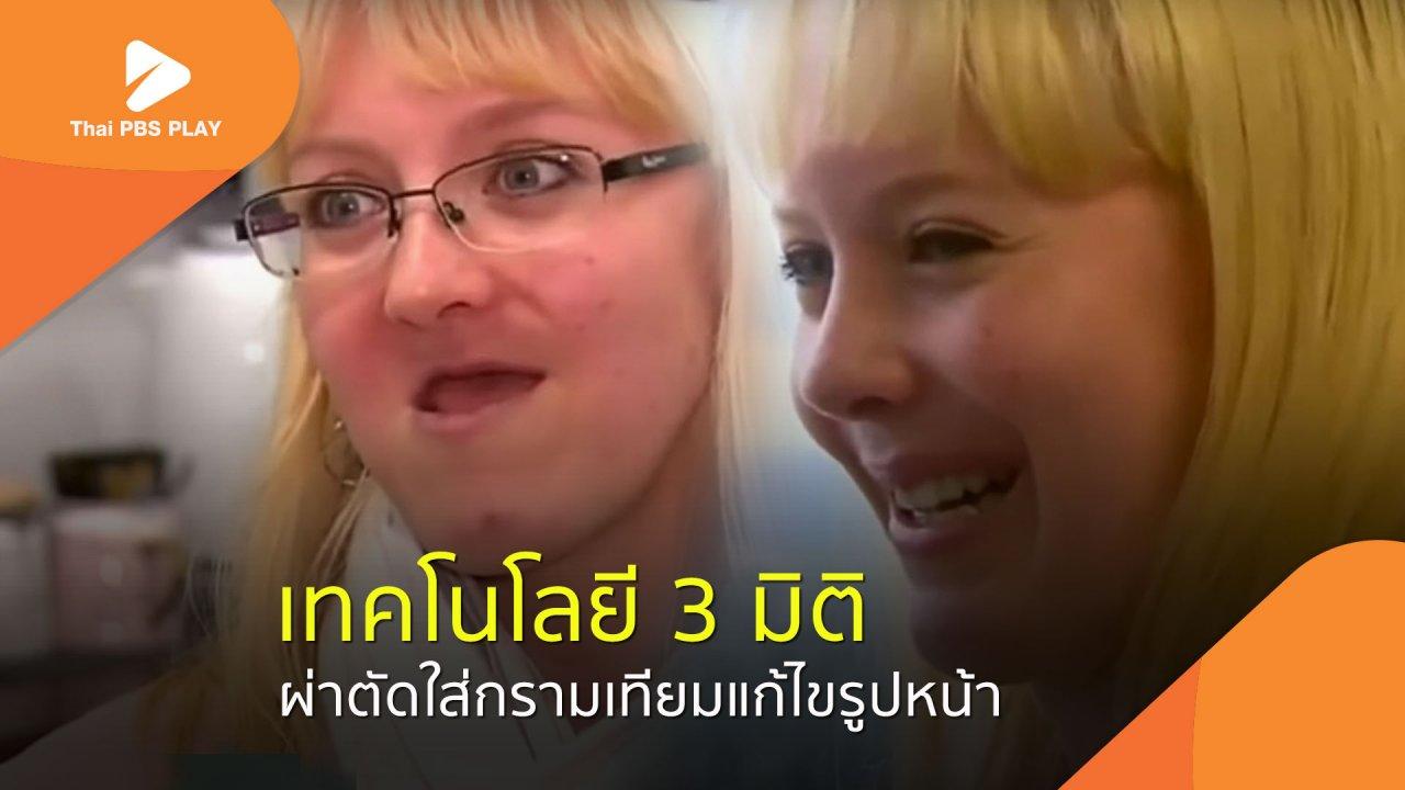 Thai PBS Play - ผ่าตัดใส่กรามเทียมแก้ไขรูปหน้า