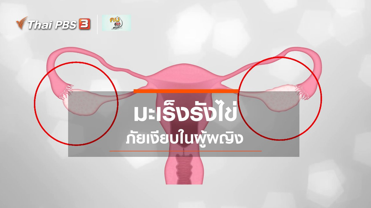 คนสู้โรค - รู้สู้โรค : มะเร็งรังไข่ ภัยเงียบในผู้ผญิง