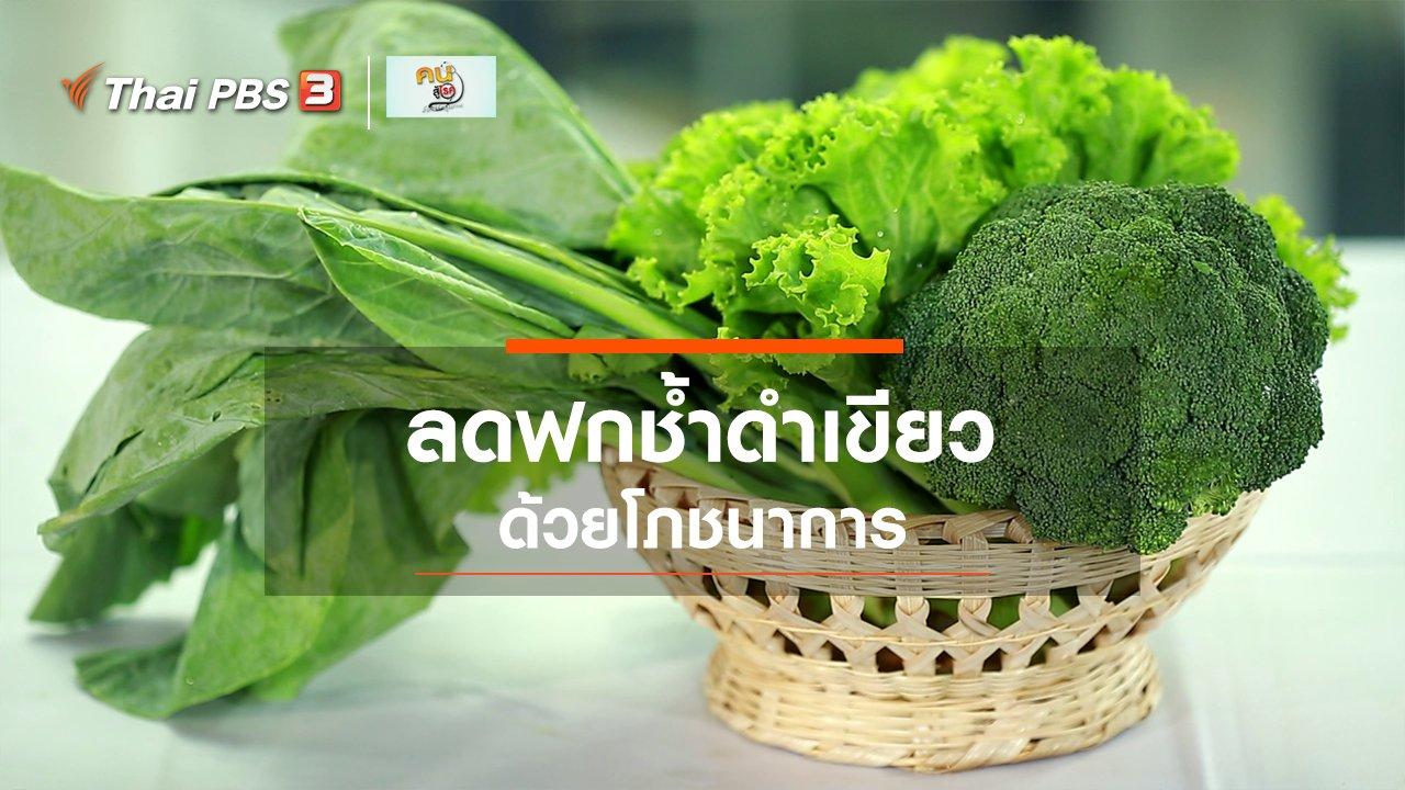 คนสู้โรค - รู้สู้โรค : ลดอาการฟกช้ำดำเขียวด้วยโภชนาการ