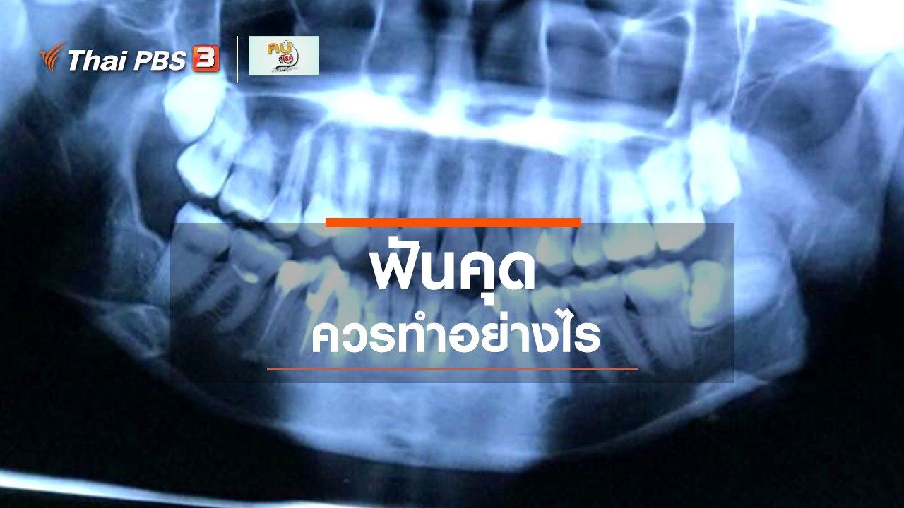 """คนสู้โรค - รู้สู้โรค : """"ฟันคุด"""" ควรทำอย่างไร"""