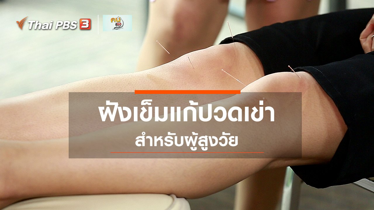 คนสู้โรค - ปรับก่อนป่วย : ฝังเข็มแก้ปวดเข่า