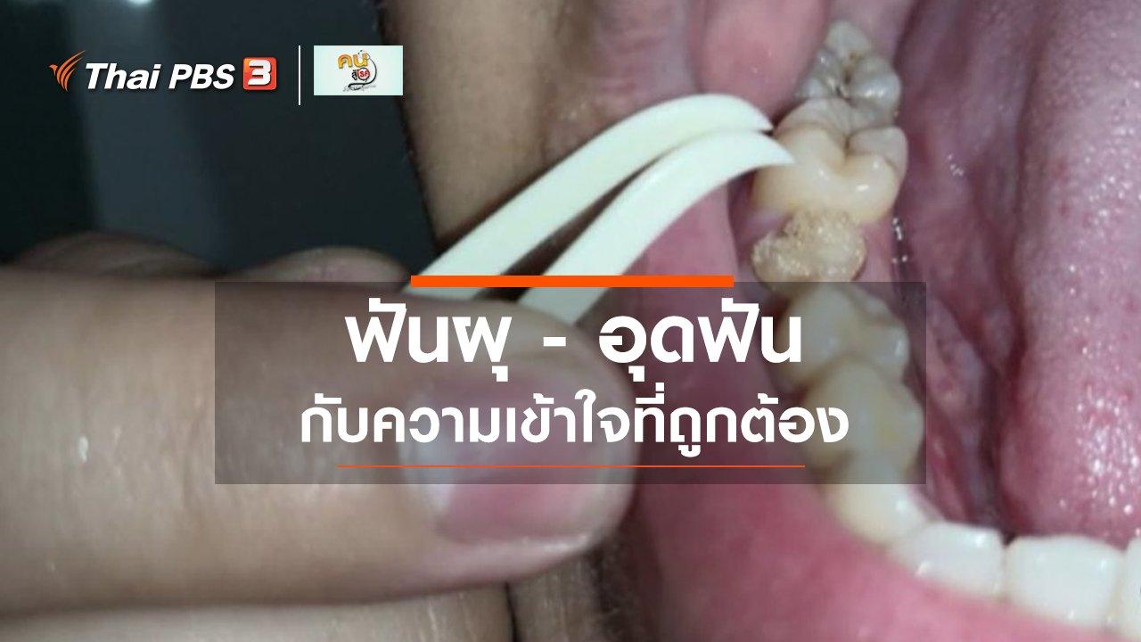 คนสู้โรค - รู้สู้โรค : ความเข้าใจที่ถูกต้องเรื่องฟันผุ และการอุดฟัน